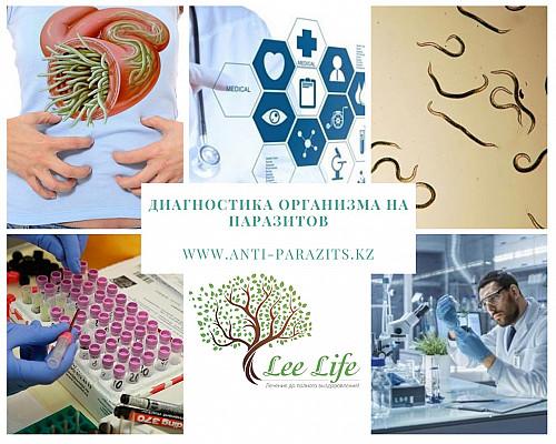 Комплексная диагностика организма на паразитов. Алматы